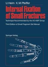 Internal Fixation of Small Fractures: Technique Recommended by the AO-ASIF Group