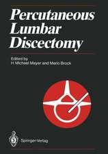 Percutaneous Lumbar Discectomy
