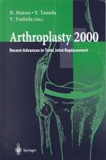 Arthroplasty 2000: Recent Advances in Total Joint Replacement