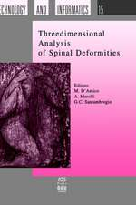 Three Dimensional Analysis of Spinal Deformities