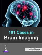 101 Cases in Brain Imaging
