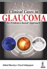 Clinical Cases in Glaucoma: An Evidence Based Approach